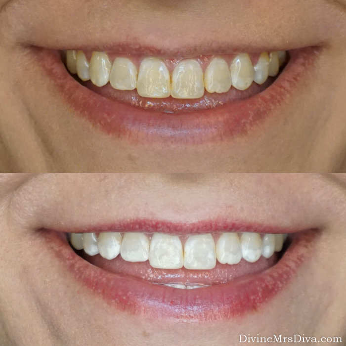 Teeth Whitening for Sensitive Teeth - Smile Brilliant Review - At Home Teeth Whitening - DivineMrsDiva.com #teethwhitening #teethwhiteningforsensitiveteeth #athometeethwhitening #teethwhiteningreview #smilebrilliant #smilefearlessly